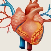 Cardiovascular Disease Risk and RA