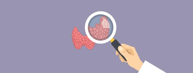 The Mysterious Thyroid