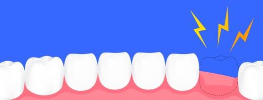 Oh, My Aching Teeth image