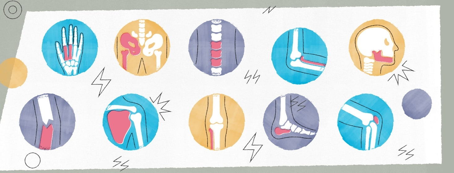 Illustrations of all the joints in the body