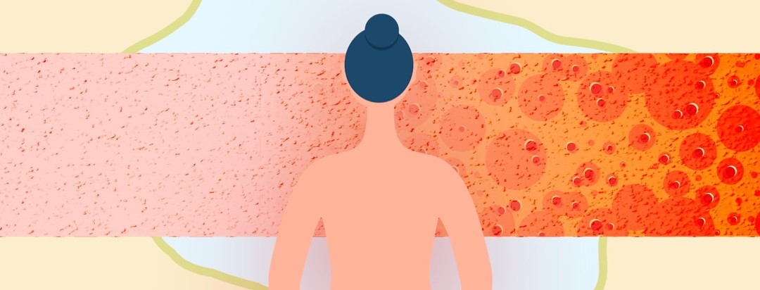 Shirtless woman turned away from the viewer looking at a progressing timeline from a simple skin rash to a major skin infection