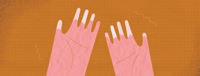 Raynaud's Disease image