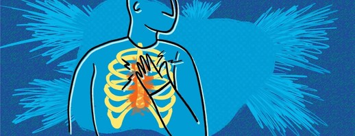 RA Chest Pain (Costochondritis) image