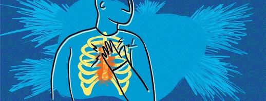 RA Chest Pain (Costochondritis) image