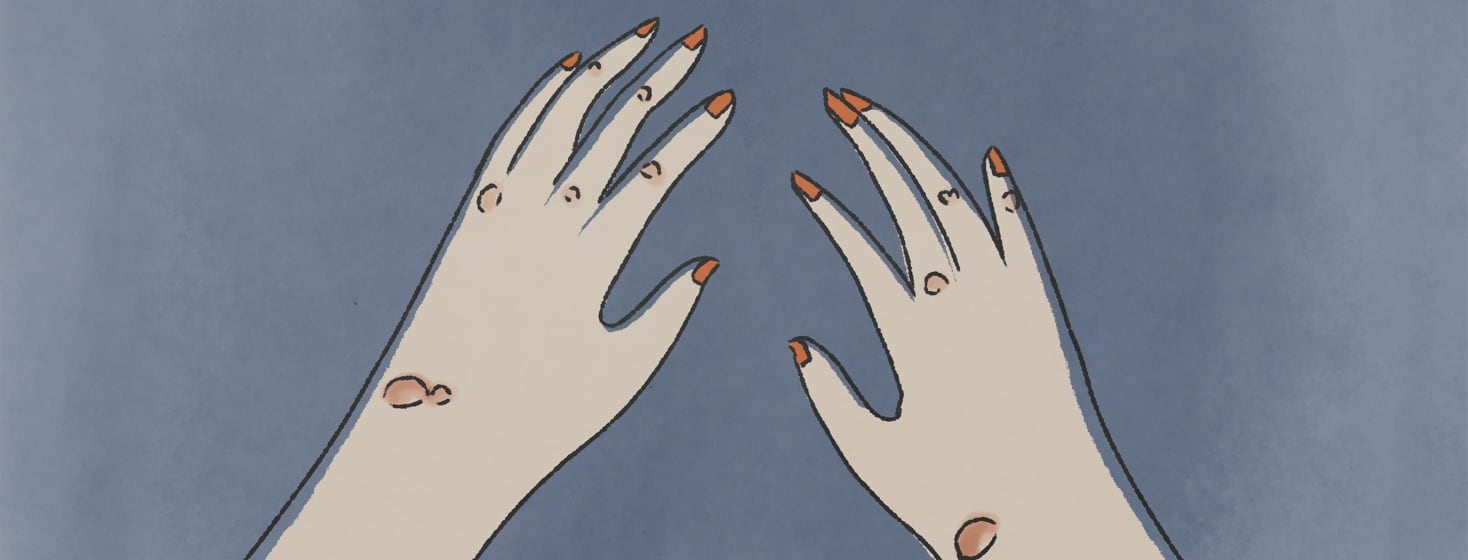 Two hands with rheumatoid nodules in on them.