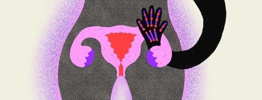 Does Menopause Affect Rheumatoid Arthritis? image