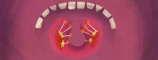 Tonsils and RA? image