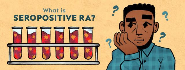 What Is Seropositive Rheumatoid Arthritis (RA)? image